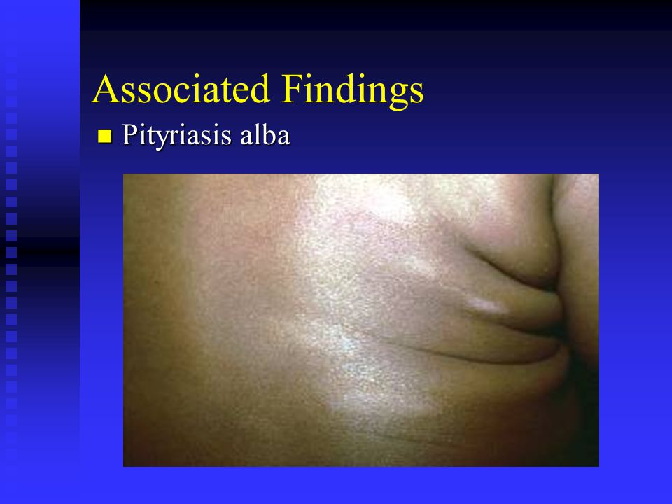 Associated Findings Pityriasis alba