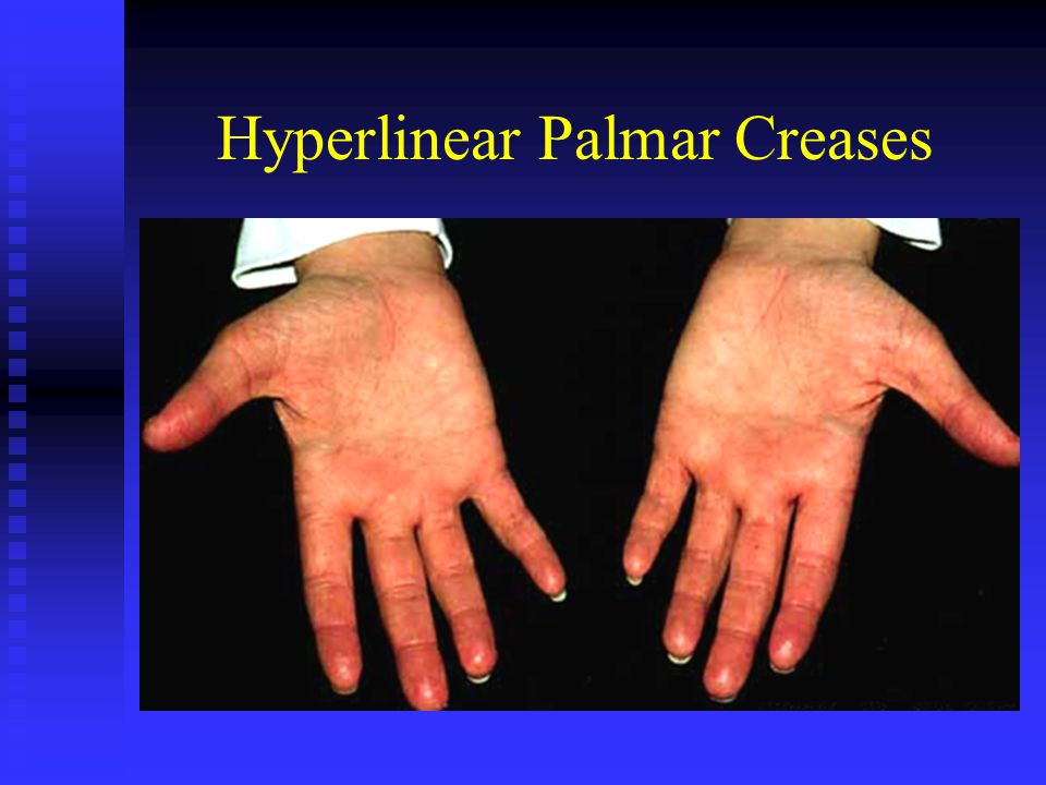 Hyperlinear Palmar Creases