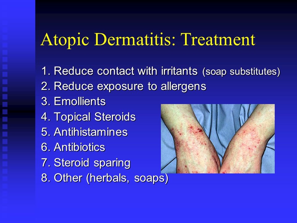 Atopic Dermatitis: Treatment