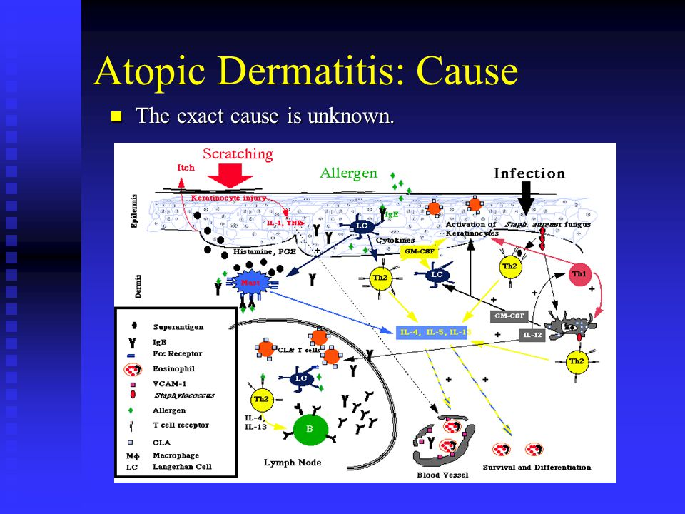 Atopic Dermatitis: Cause