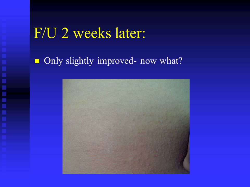 F/U 2 weeks later: Only slightly improved- now what