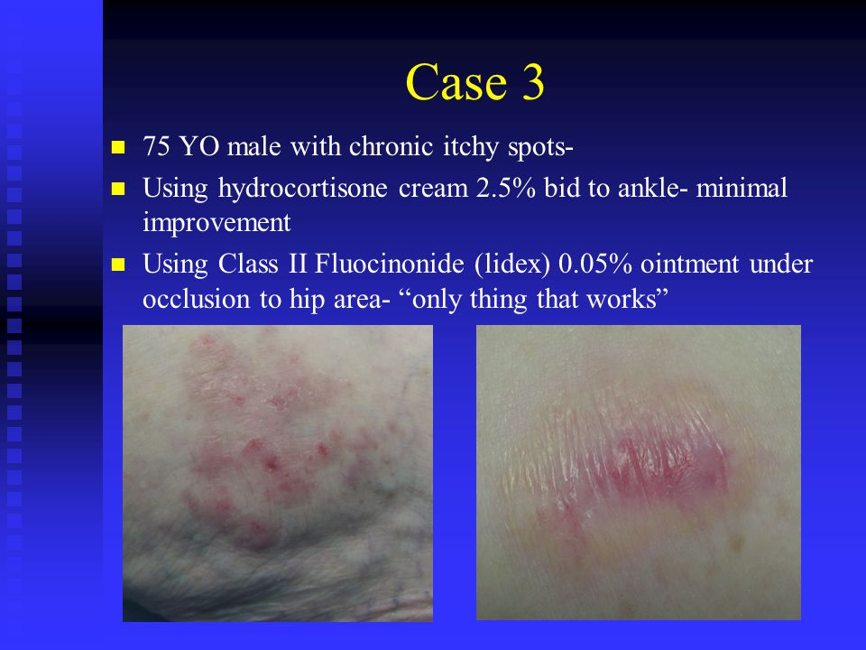 Case 3 75 YO male with chronic itchy spots-