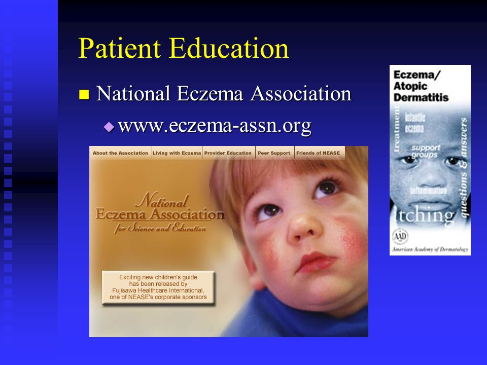 Patient Education National Eczema Association www.eczema-assn.org