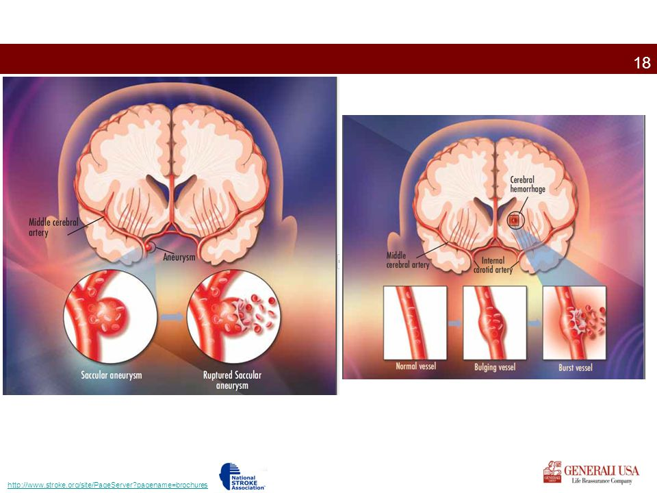 http://www.stroke.org/site/PageServer pagename=brochures