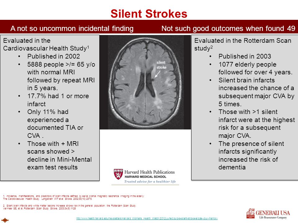 Silent Strokes A not so uncommon incidental finding