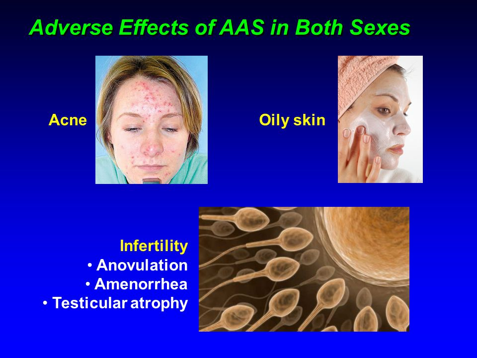 Adverse Effects of AAS in Both Sexes