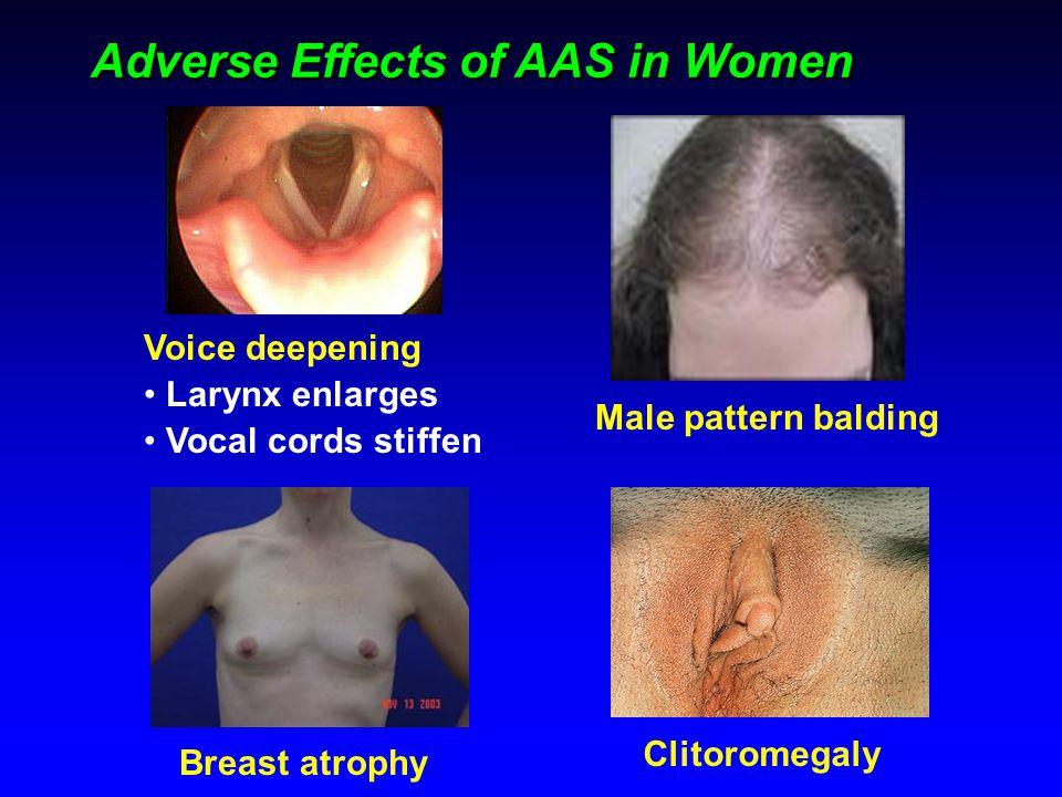 Adverse Effects of AAS in Women