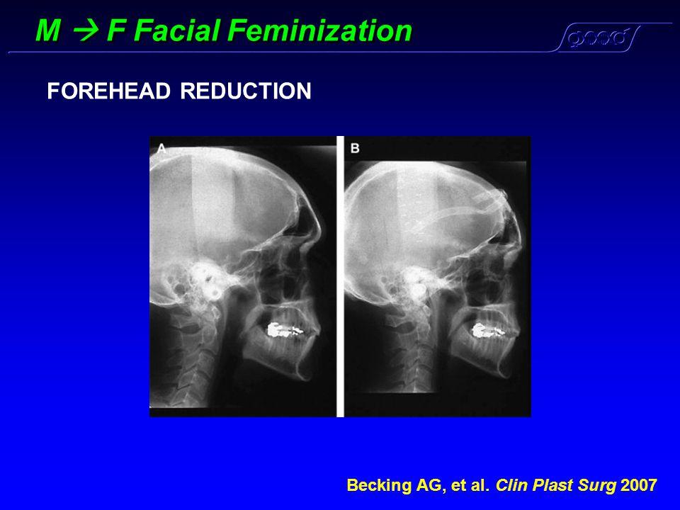 M  F Facial Feminization