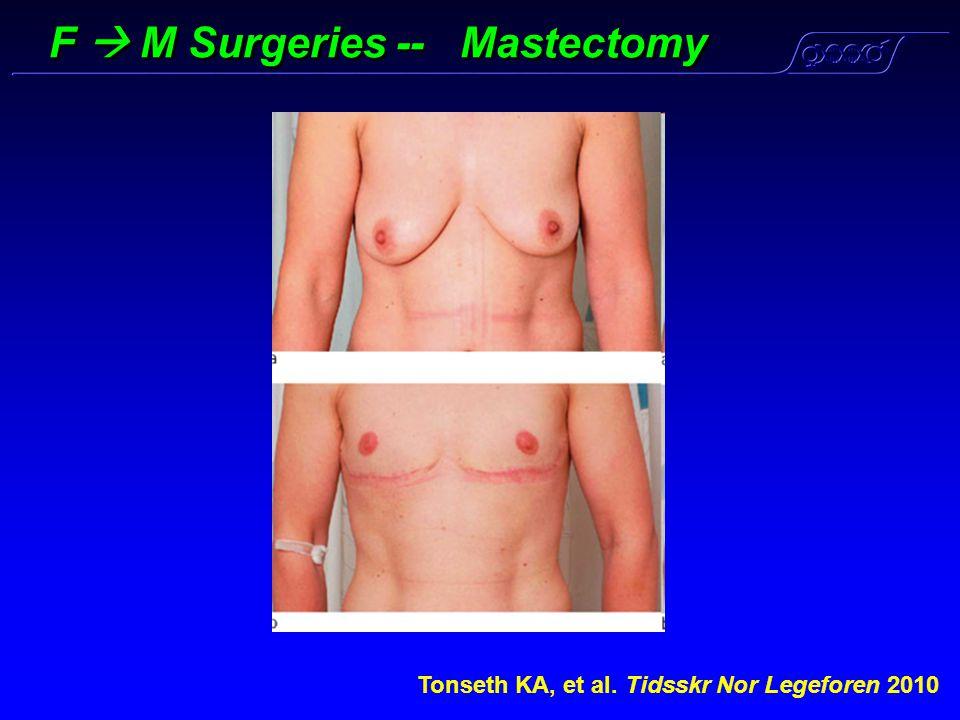 F  M Surgeries -- Mastectomy