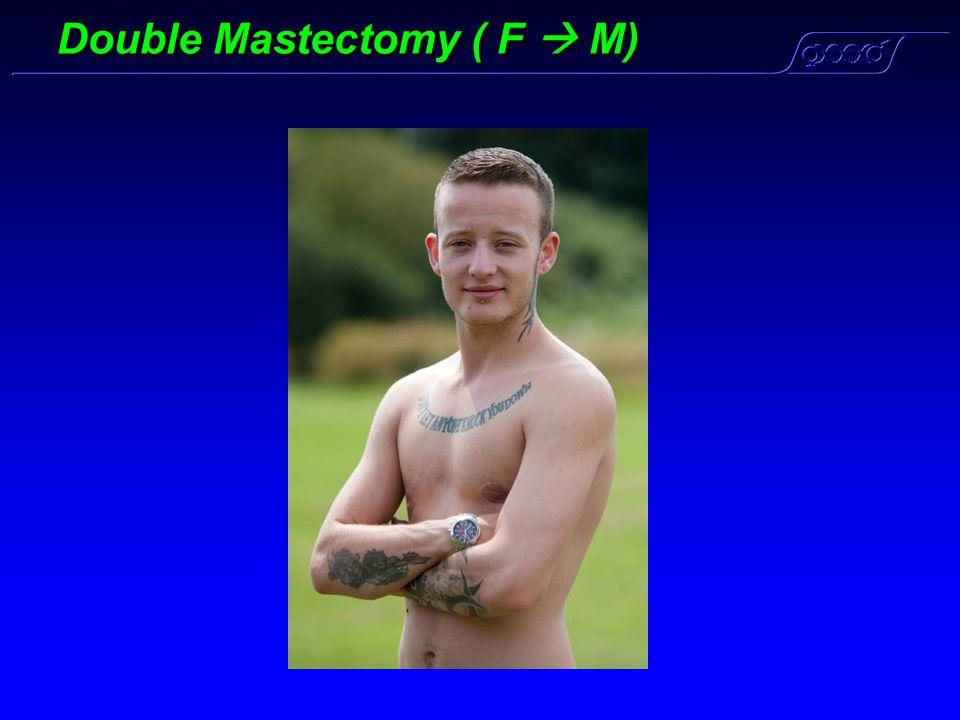 Double Mastectomy ( F  M)