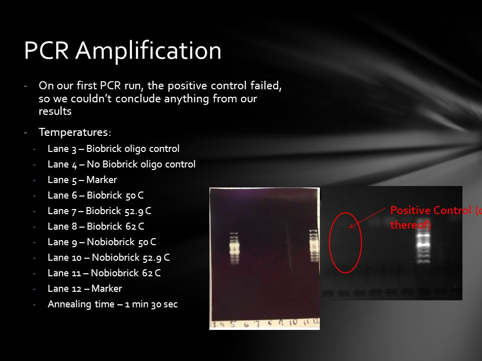 PCR Amplification On our first PCR run, the positive control failed, so we couldn't conclude anything from our results.
