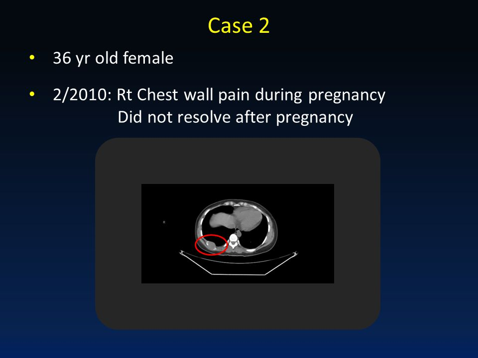 Case 2 36 yr old female 2/2010: Rt Chest wall pain during pregnancy