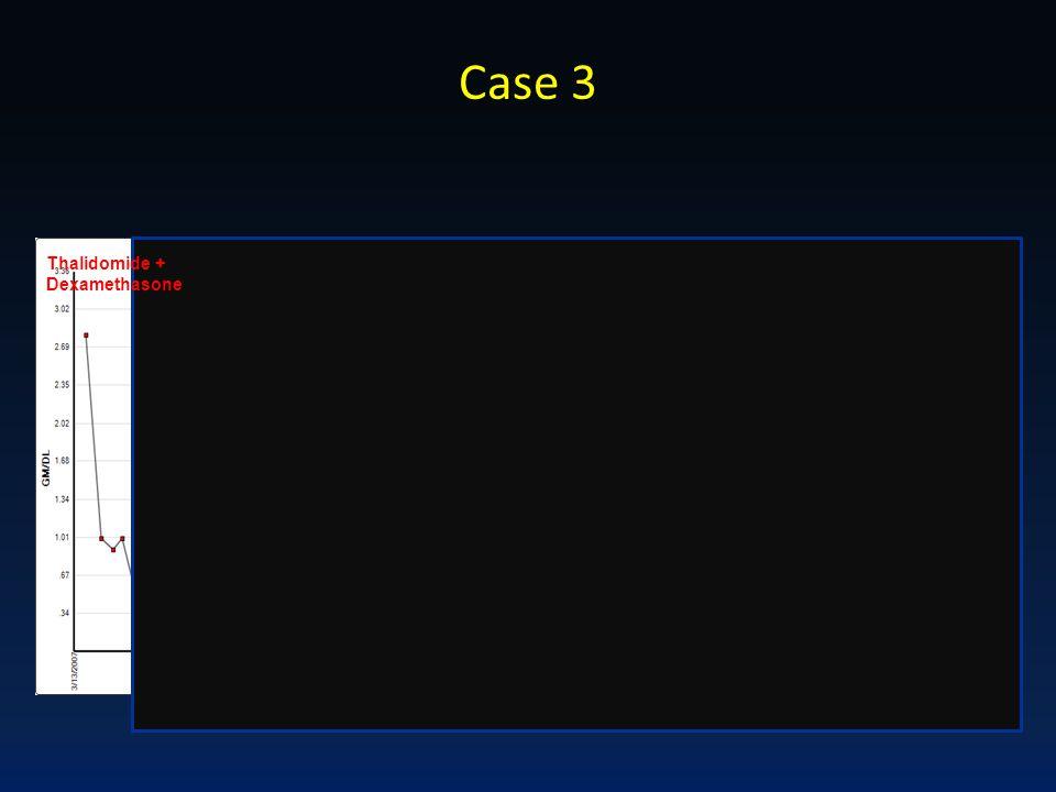 Case 3 Thalidomide + Dexamethasone HDM + AuSCT