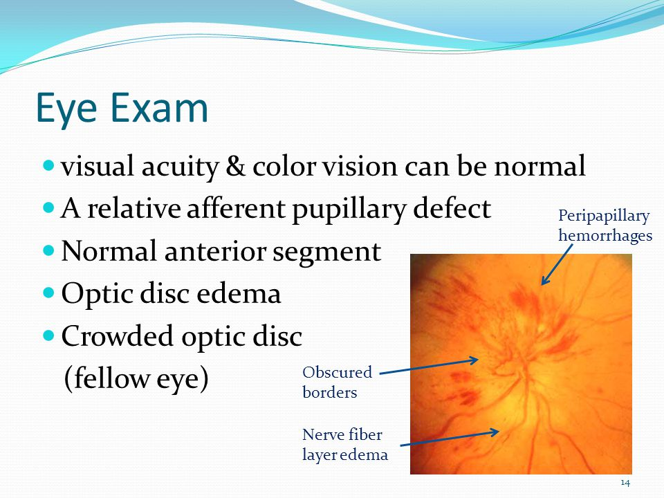 Cialis ischemic optic neuropathy