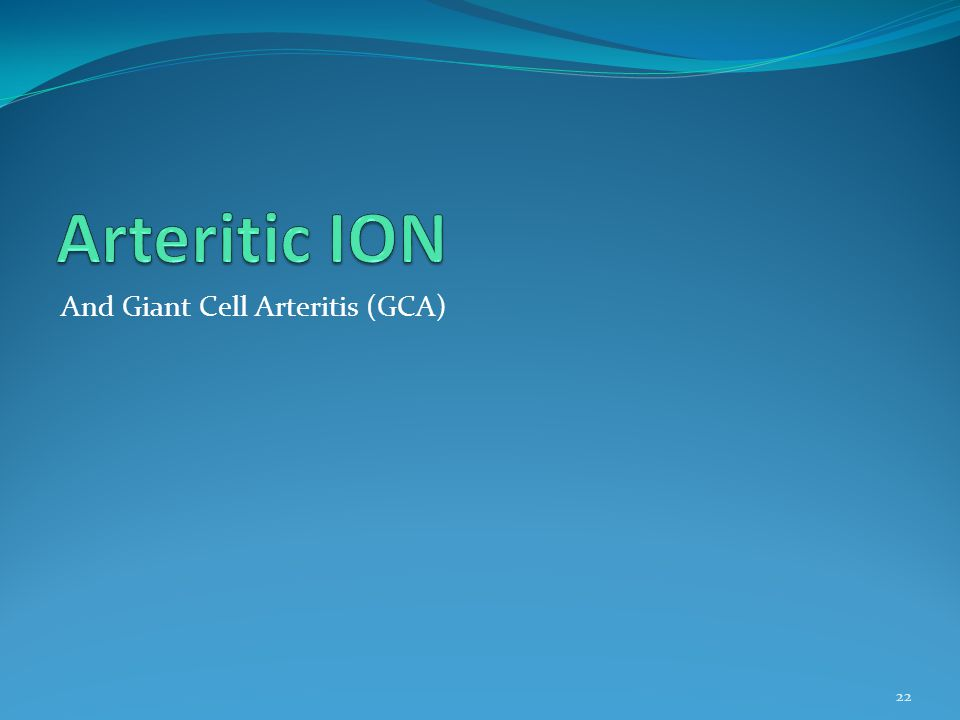 Arteritic ION And Giant Cell Arteritis (GCA)