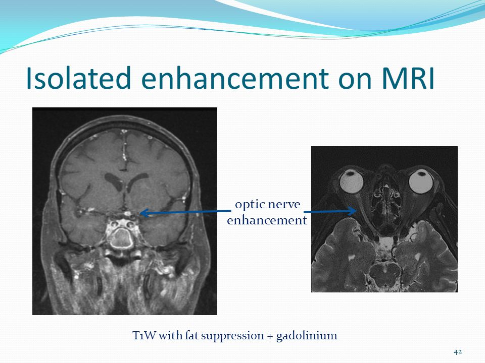 Isolated enhancement on MRI