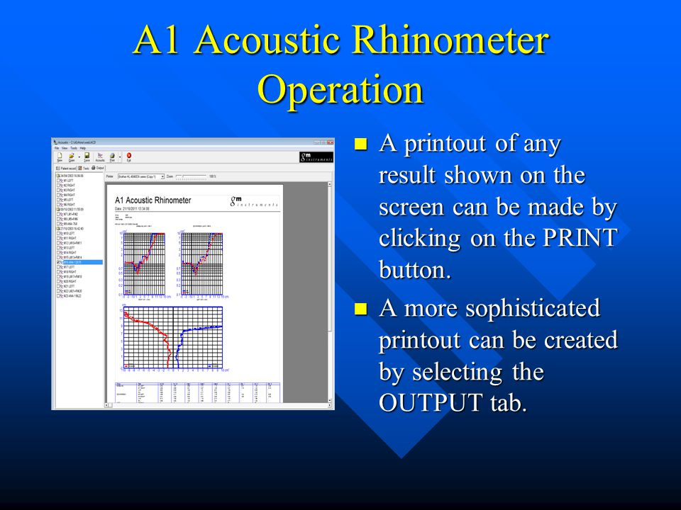 A1 Acoustic Rhinometer Operation