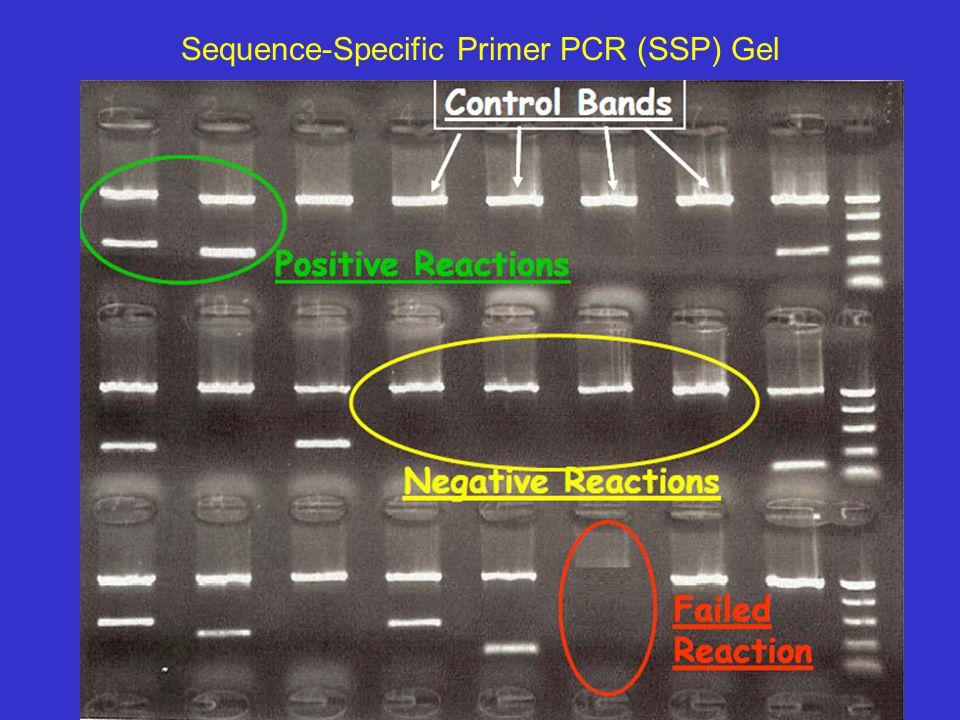 Sequence-Specific Primer PCR (SSP) Gel