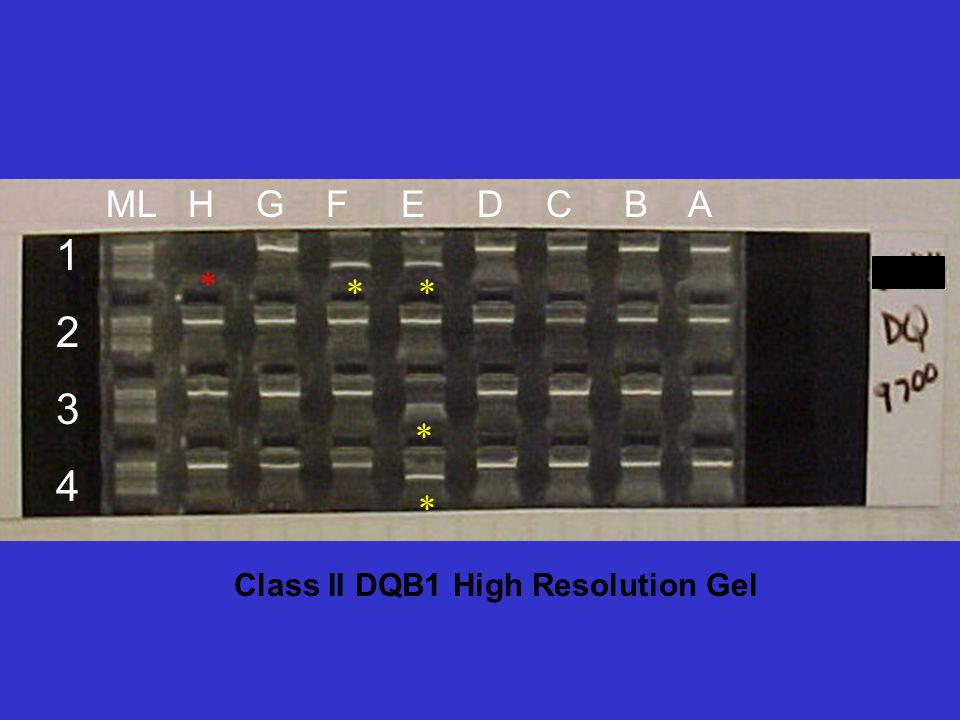 Class II DQB1 High Resolution Gel