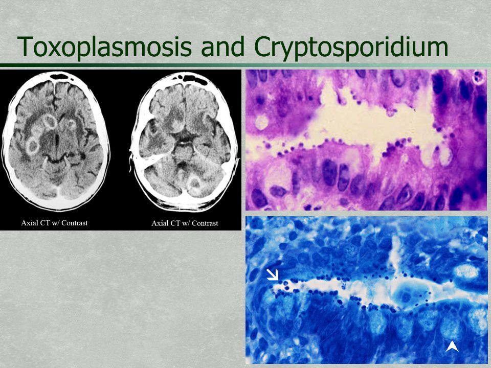 Toxoplasmosis and Cryptosporidium