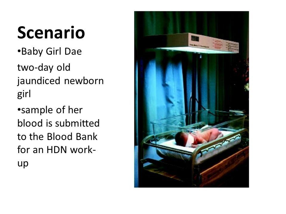Scenario Baby Girl Dae two-day old jaundiced newborn girl