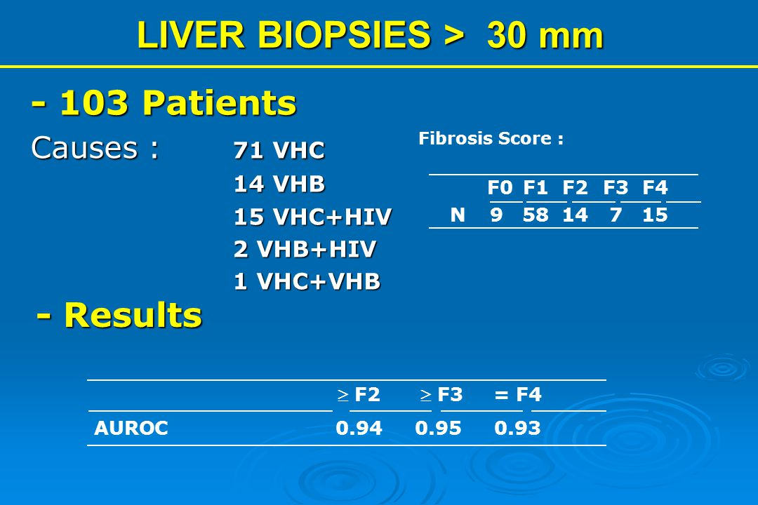 LIVER BIOPSIES > 30 mm - 103 Patients - Results Causes : 71 VHC