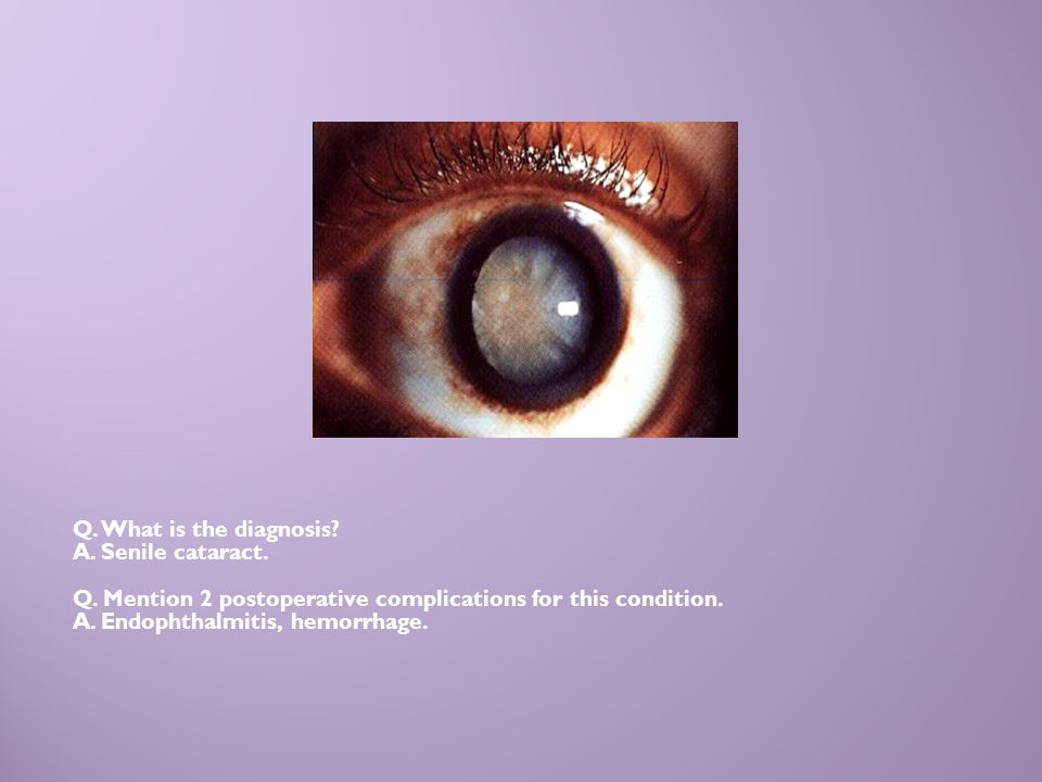 Q. What is the diagnosis A. Senile cataract. Q. Mention 2 postoperative complications for this condition.
