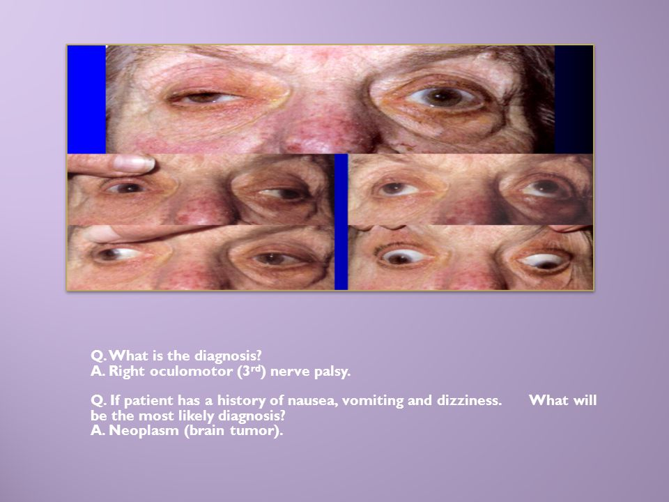 Q. What is the diagnosis A. Right oculomotor (3rd) nerve palsy.
