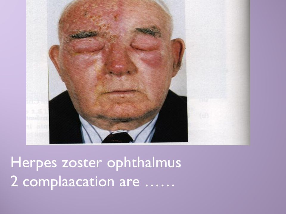 Herpes zoster ophthalmus