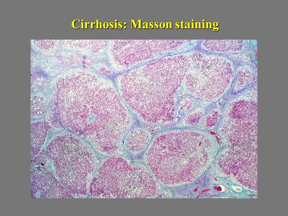 Cirrhosis: Masson staining