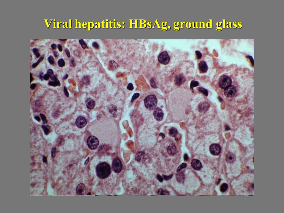 Viral hepatitis: HBsAg, ground glass