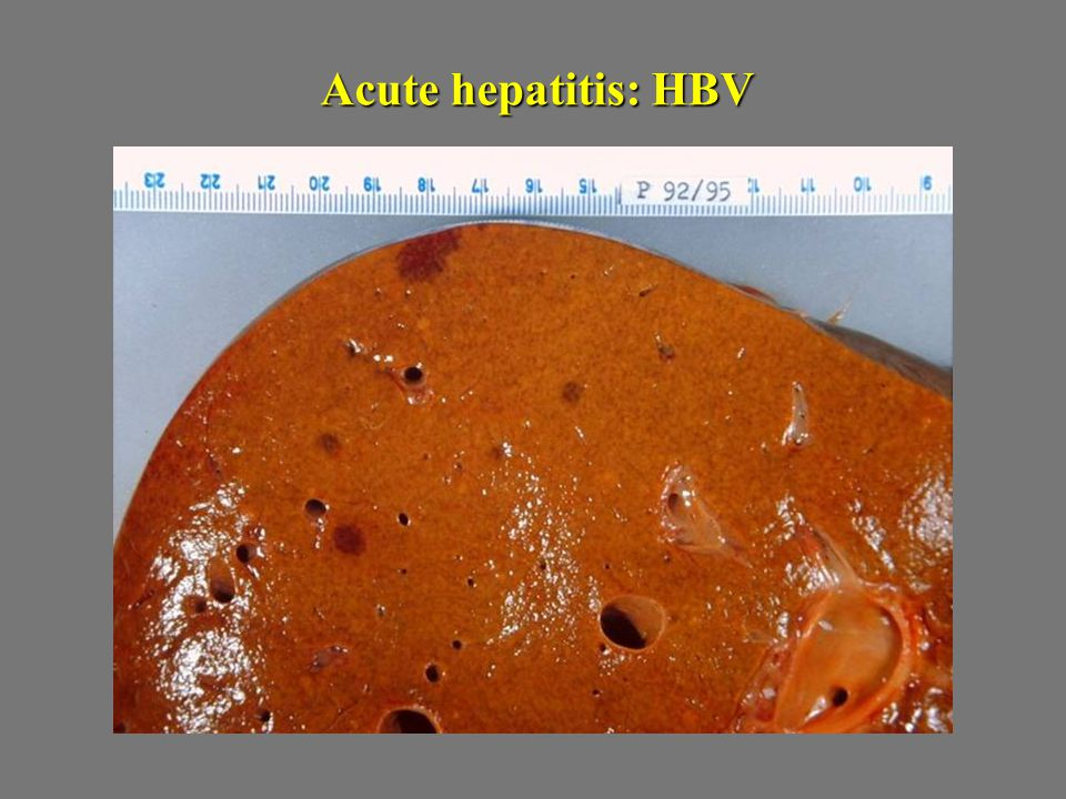 Acute hepatitis: HBV