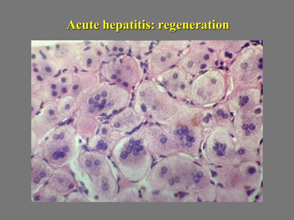 Acute hepatitis: regeneration