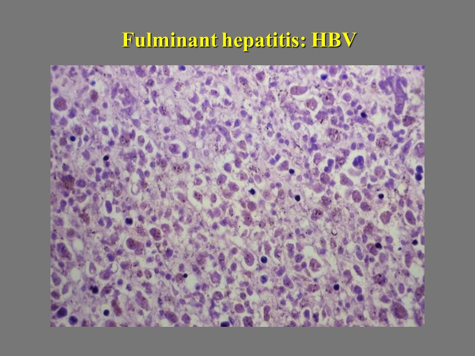 Fulminant hepatitis: HBV