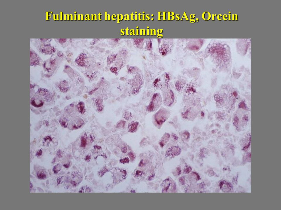 Fulminant hepatitis: HBsAg, Orcein staining