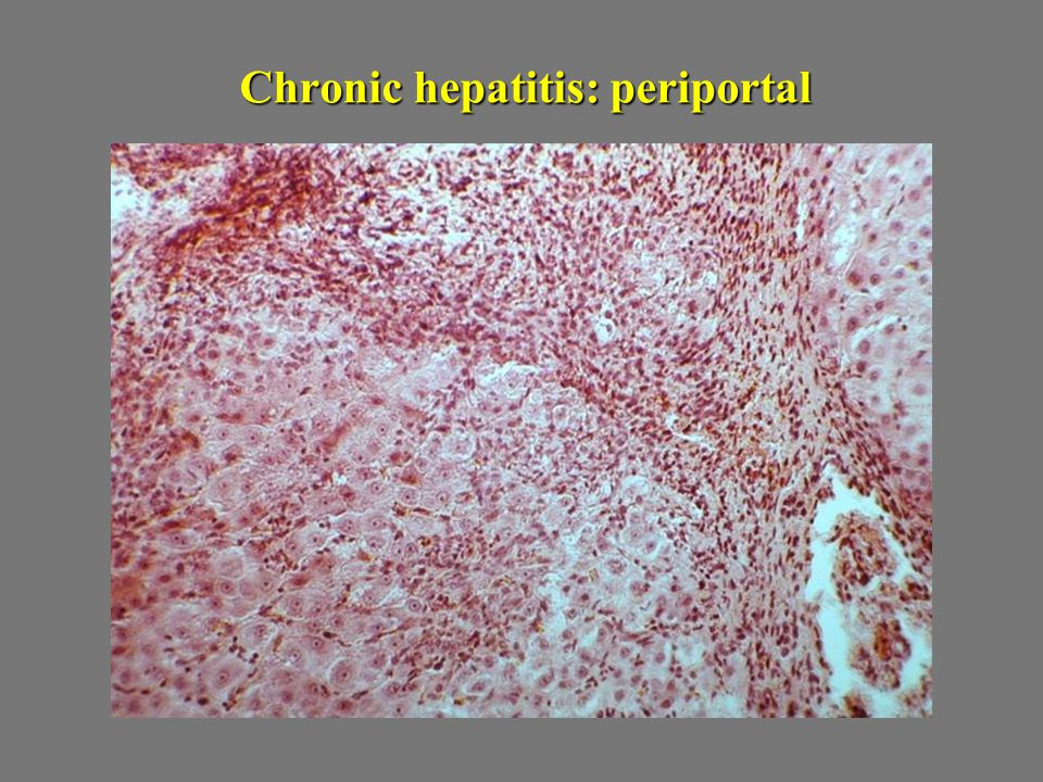 Chronic hepatitis: periportal