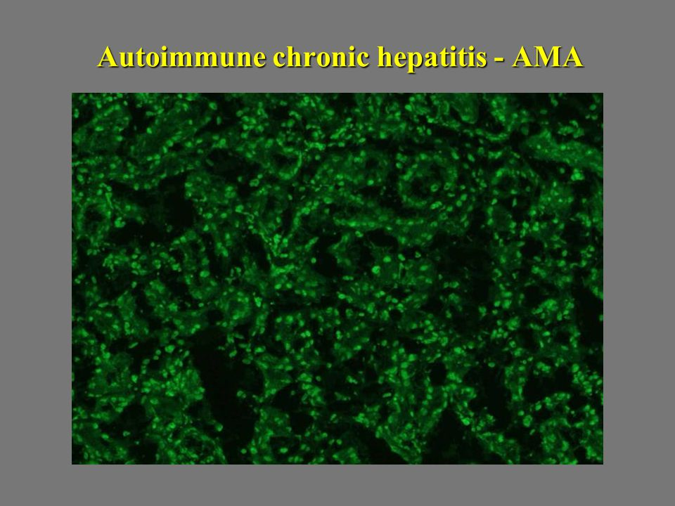 Autoimmune chronic hepatitis - AMA