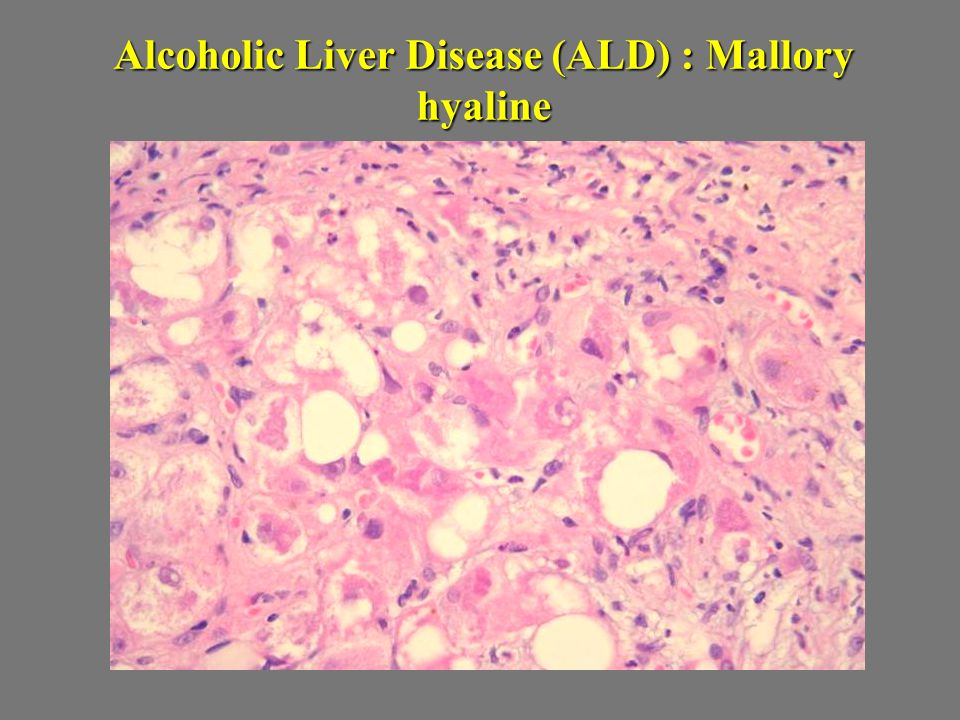 Alcoholic Liver Disease (ALD) : Mallory hyaline