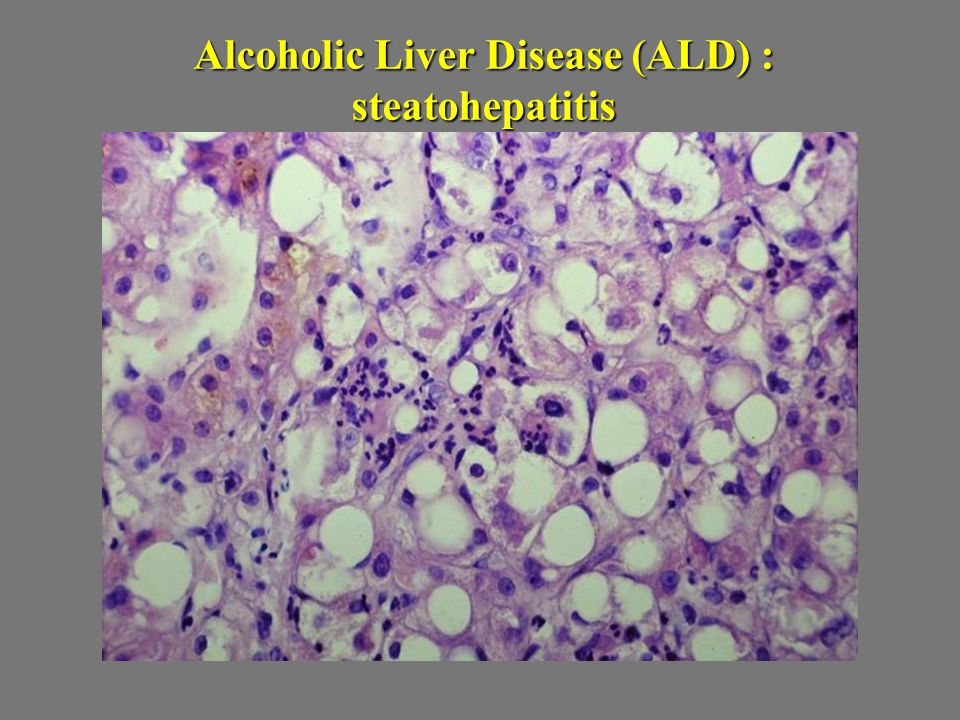 Alcoholic Liver Disease (ALD) : steatohepatitis