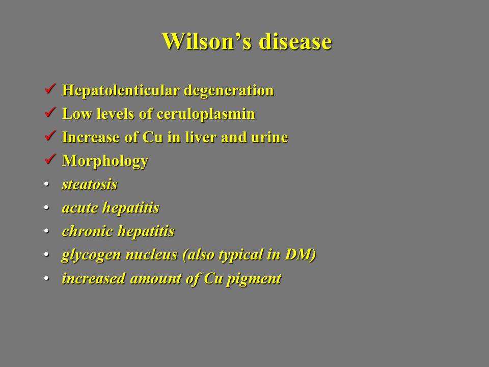 Wilson's disease Hepatolenticular degeneration