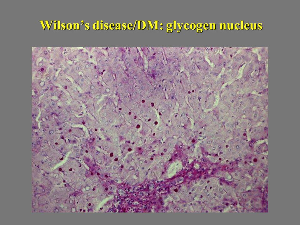 Wilson's disease/DM: glycogen nucleus