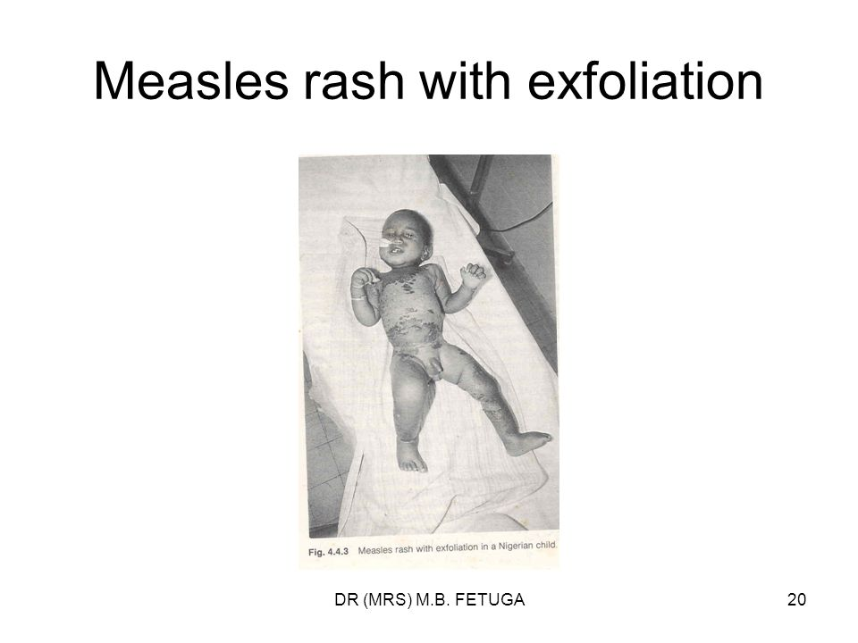 Measles rash with exfoliation