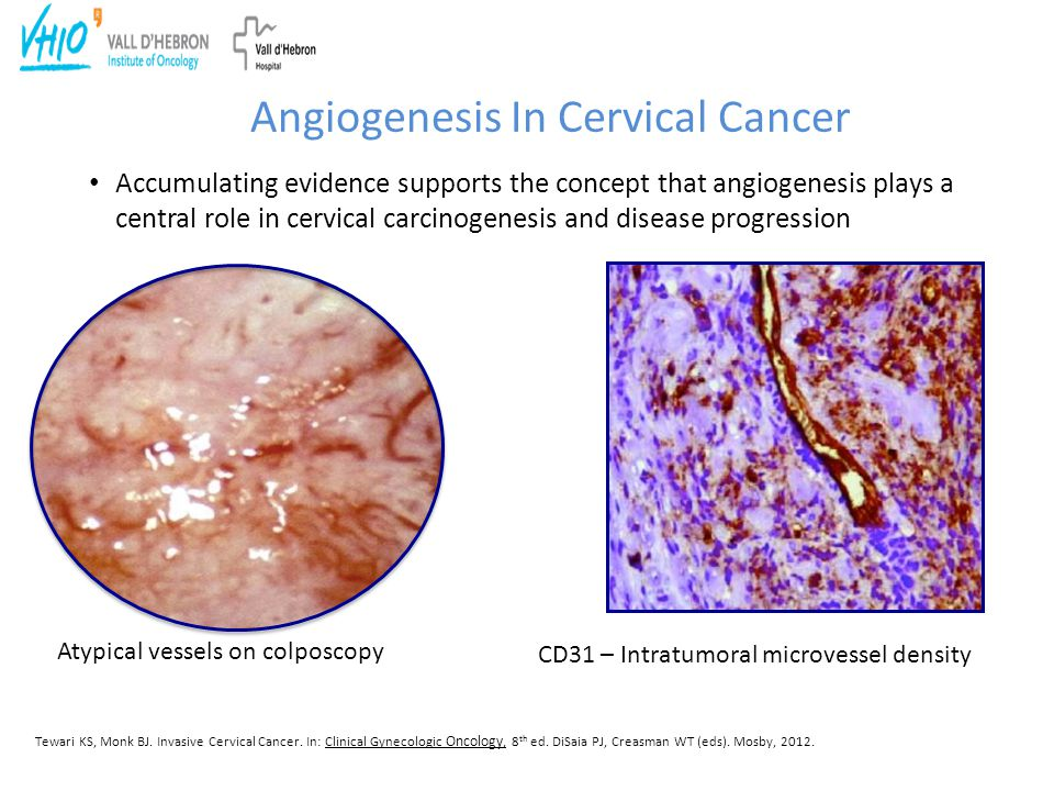 Angiogenesis In Cervical Cancer