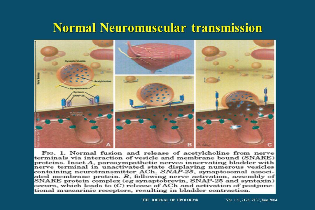 Normal Neuromuscular transmission