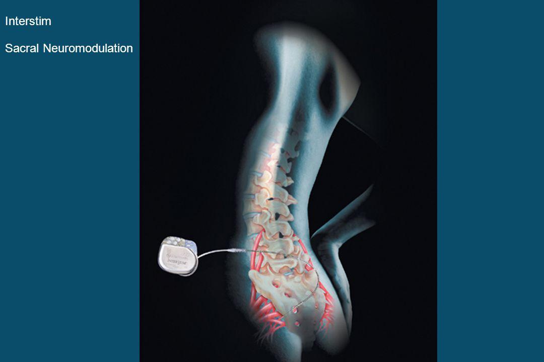 Interstim Sacral Neuromodulation