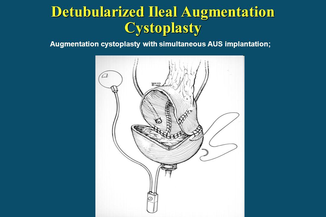 Detubularized Ileal Augmentation Cystoplasty