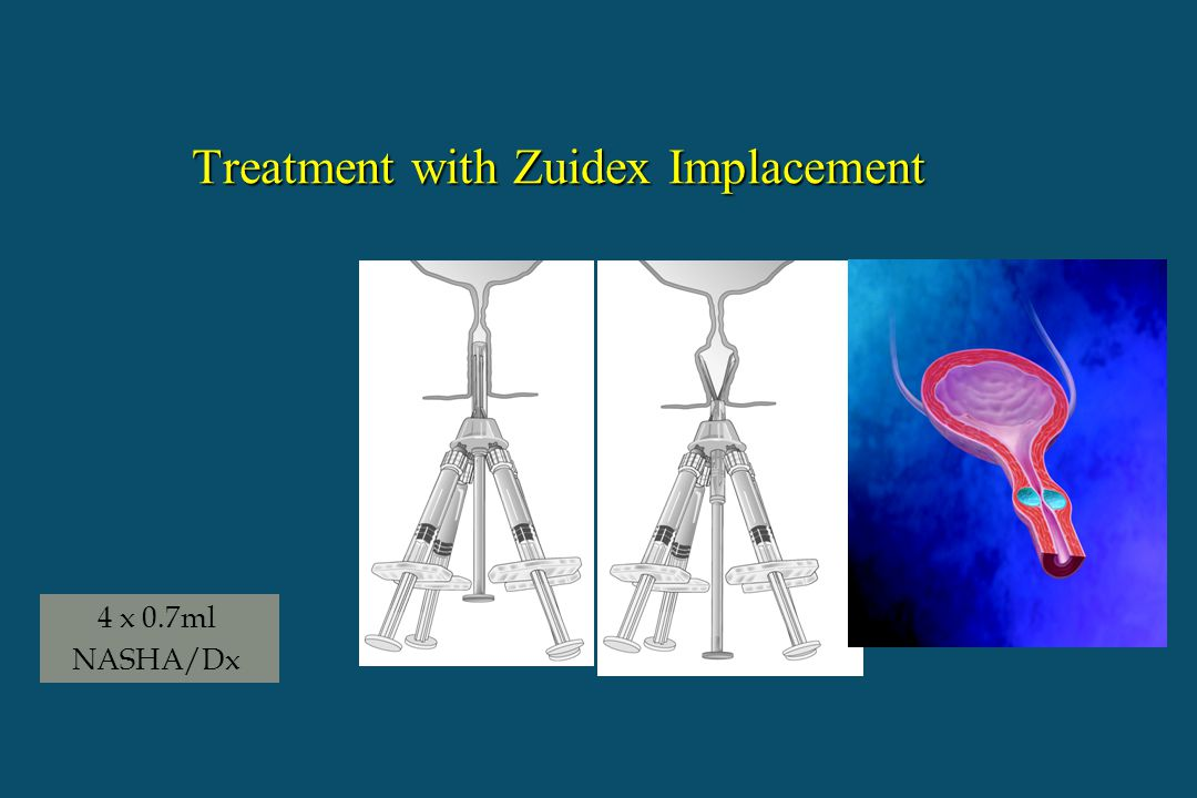 Treatment with Zuidex Implacement