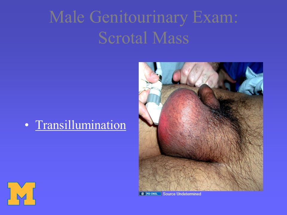 Male Genitourinary Exam: Scrotal Mass