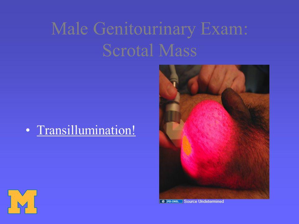 Male Genitourinary Exam: Scrotal Mass