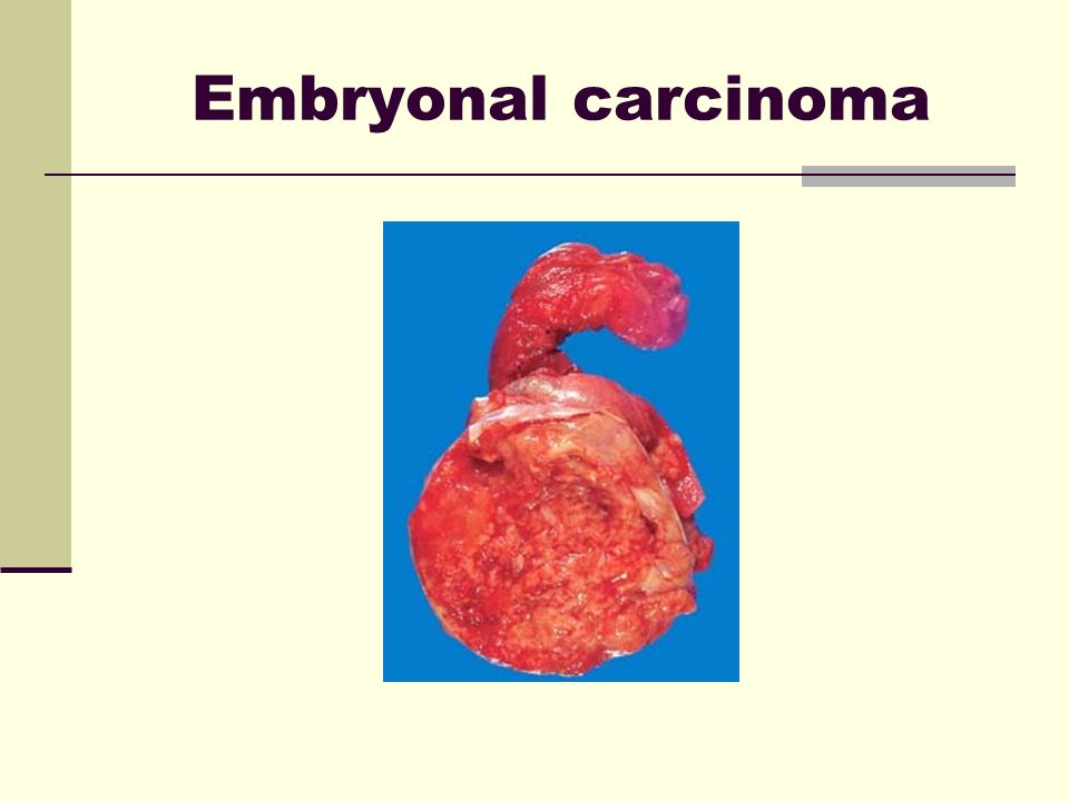 Embryonal carcinoma